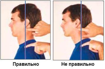 нарушения осанки 5